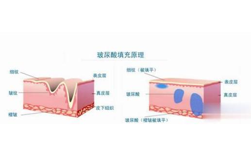 玻尿酸:医美中的茅台,一门百亿级的颜值生意